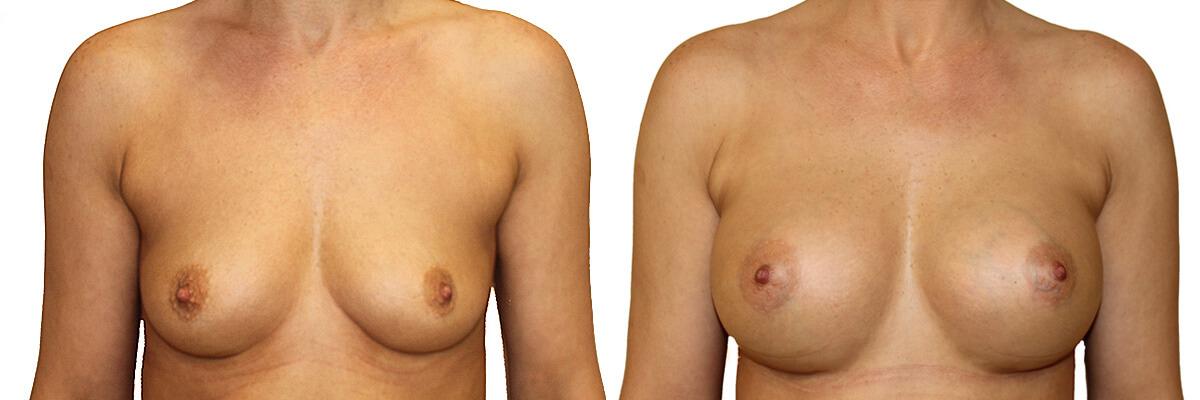 Piersi przed i po operacji plastyczne