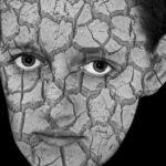 Poznaj fakty i mity na temat łuszczycy