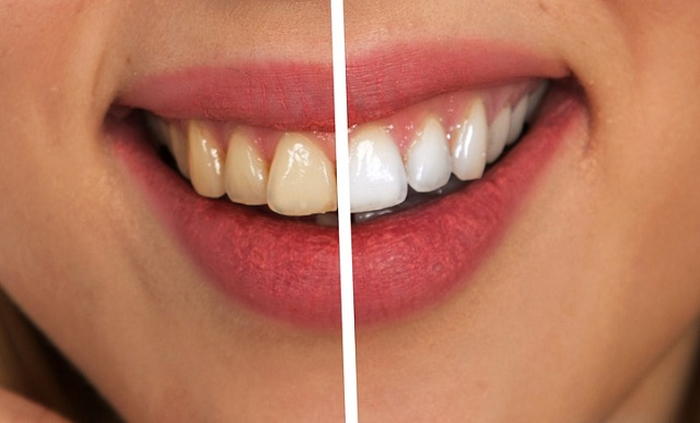 Uśmiech przed i po wybielaniu